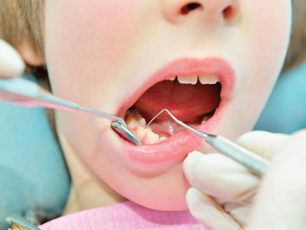 Implant Retained Full Dentures - Crescent Dental